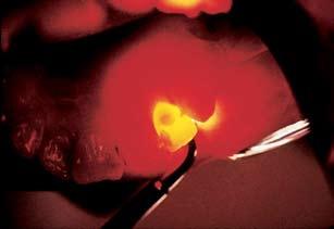 Sure Dental Innovations Microlux Transilluminator